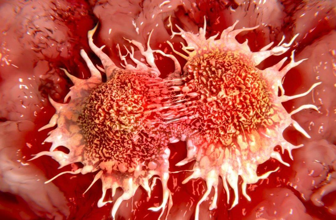 Kanserli Tümörlerin Büyümesini Engelleyen Yeni Bir Kanser İlacı Bulundu