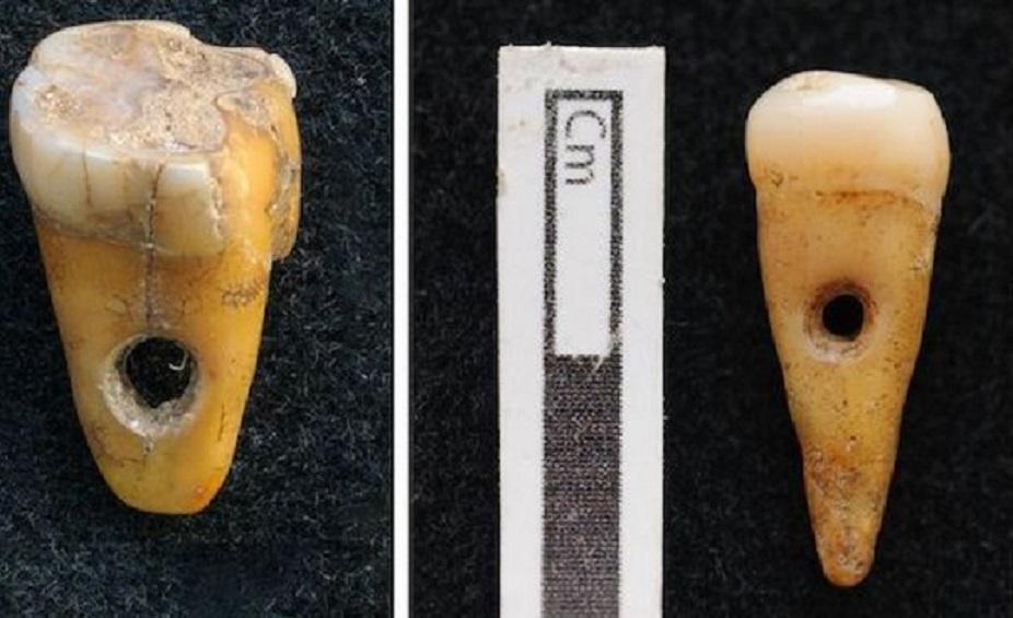 Çatalhöyük'te İnsan Dişinden Yapılmış Takılar Bulundu